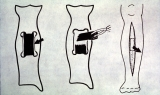 Joseph Smith's Leg Operation Procedure